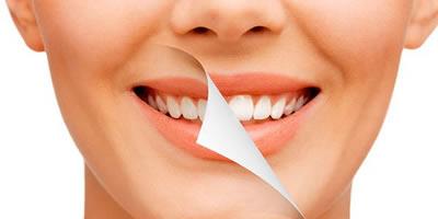 Отбеливание/удаление зубного камня