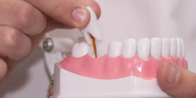 Импланты/протезирование зубов
